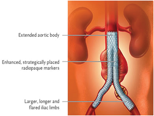 In Addition To Concerns About Rupture, Clots Or Debris May Also Develop  Within An AAA. These Substances Can Be Carried To Other Areas In The Body  And Block ...